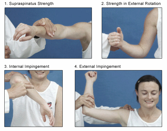 Drop Arm Test Shoulder